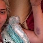 karissa kristina shannon car accident mercedes g wagon hospital garry sun prophecy sunofhollywood 06